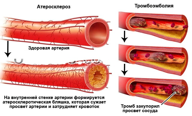 Атеросклероз и Тромбоэмболия